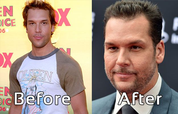 Dane Cook Plastic Surgery Photos Before After