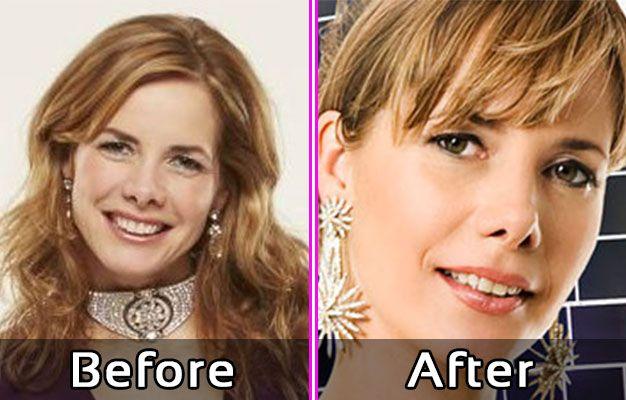 Darcey Bussel Plastic Surgery Photos Nose Job