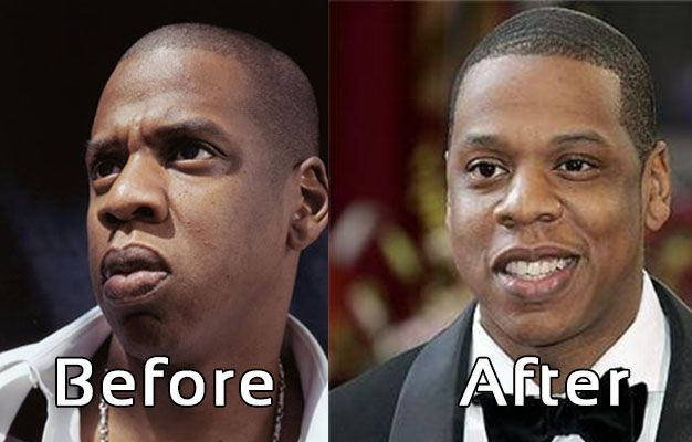 Jay Z Nose Job Plastic Surgery? Before and After Photos