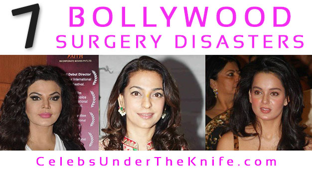 7 Bollywood Plastic Surgery Disasters Gone Wrong