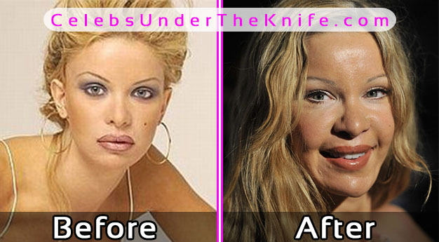 Alicia Douvall Photos – Before and After Plastic Surgery