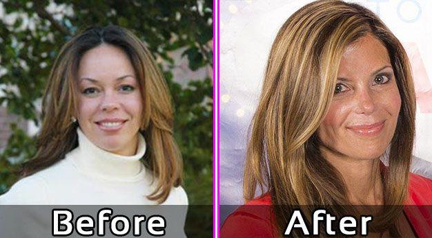 Amy Yancey Plastic Surgery Face Lift