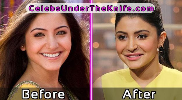 Anushka Sharma Bollywood Plastic Surgery Before and After Photos