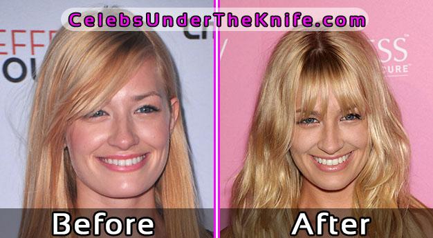 Beth Behrs Plastic Surgery Photos