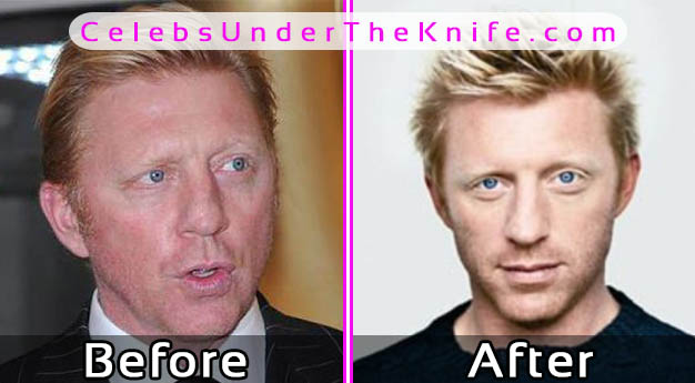Boris Becker Plastic Surgery – Before and After