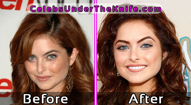 Brooke Lyons Plastic Surgery – Before and After Photos