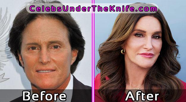 Bruce-Caitlyn Jenner Plastic Surgery Photos