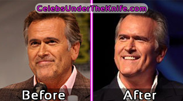 Bruce Campbell Before and After Plastic Surgery Pics
