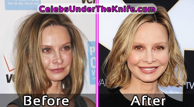 Calista Flockhart Photos Before and After Plastic Surgery