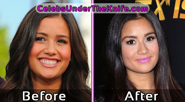 Catherine Giudici Before and After Plastic Surgery