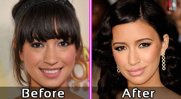 Christian Serratos Lip Plastic Surgery – Before and After Photos