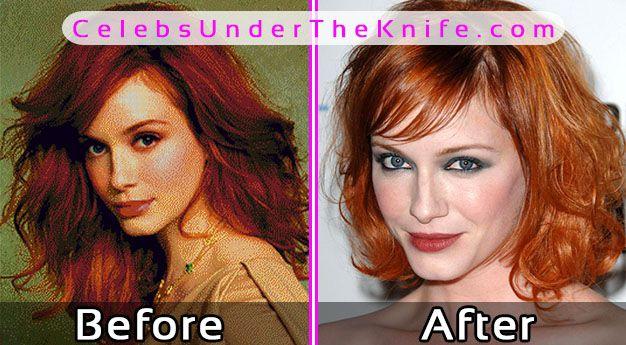 Christina Hendricks Before After Plastic Surgery