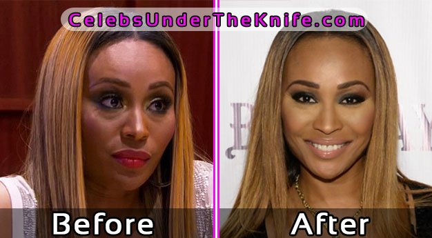 Cynthia Bailey Plastic Surgery Photos – Before and After