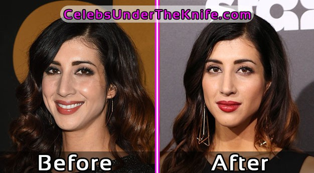 Dana DeLorenzo Plastic Surgery Photos – Before and After