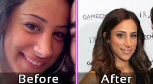 Danielle Jonas Nose Job Before After Photos