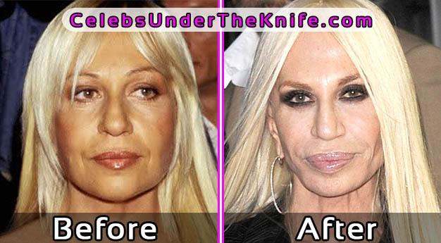 Donatella Versace Lip Job Gone Wrong Photos