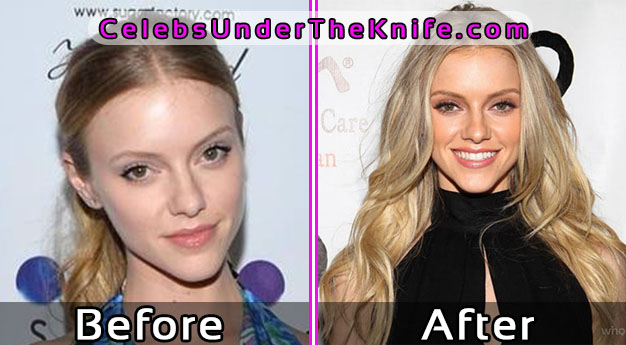 Elle Evans Before and After Plastic Surgery – Pics