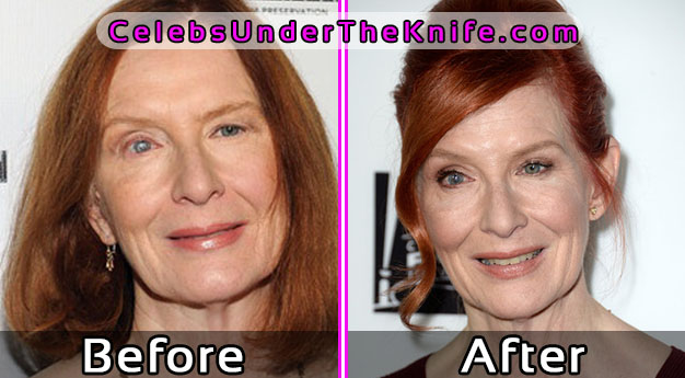 Frances Conroy Plastic Surgery Before After