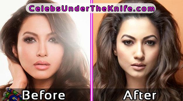 Gauhar Khan Bollywood Surgery Gone Wrong