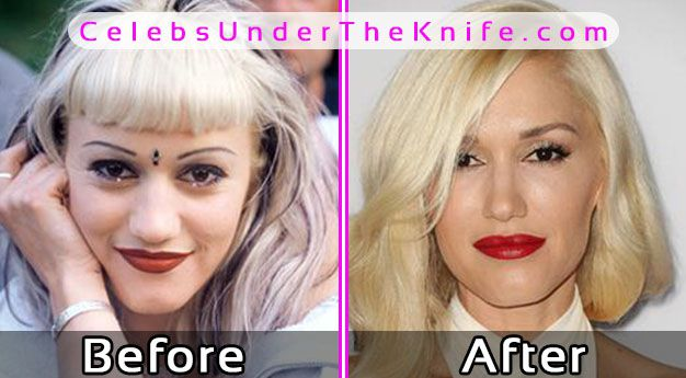 Gwen Stefani Photos Before After Plastic Surgery