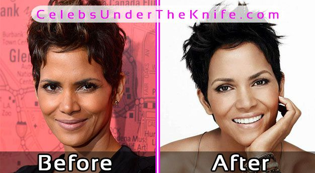 Halle Berry – Plastic Surgery Pics Before After
