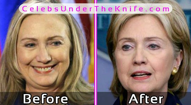 Hillary Clinton Plastic Surgery? Before After Photos!
