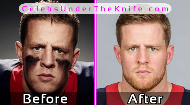 JJ Watt Nose Job – Before and After Photos