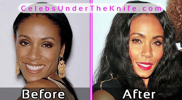 Jada Pinkett-Smith Photos Before After Plastic Surgery