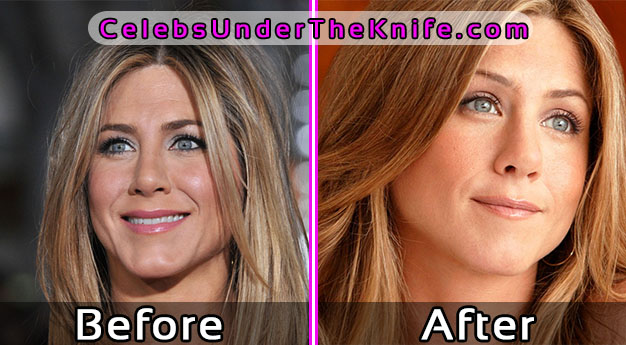 Jennifer Aniston Before and After Photos – Plastic Surgery