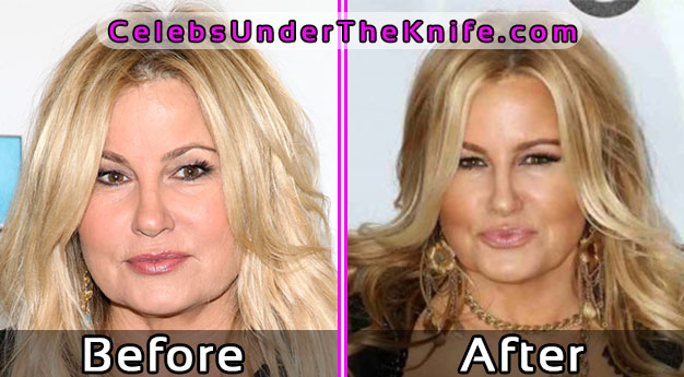 Jennifer Coolidge Plastic Surgery – Before and After