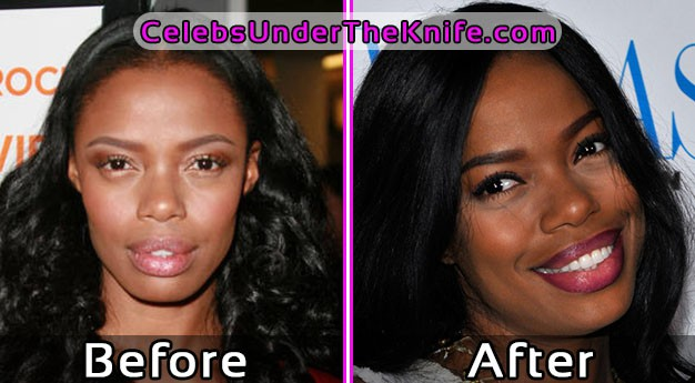 Jill Marie Photos – Before and After Plastic Surgery