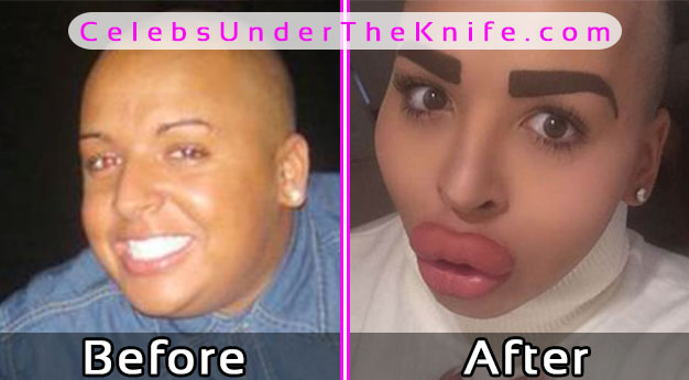 Jordan James Plastic Surgery Kim Kardashian Lookalike