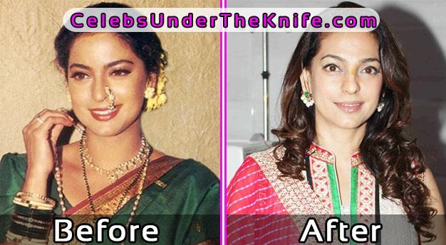Juhi Chawla Bollywood Cosmetic Surgery Revealed Photos