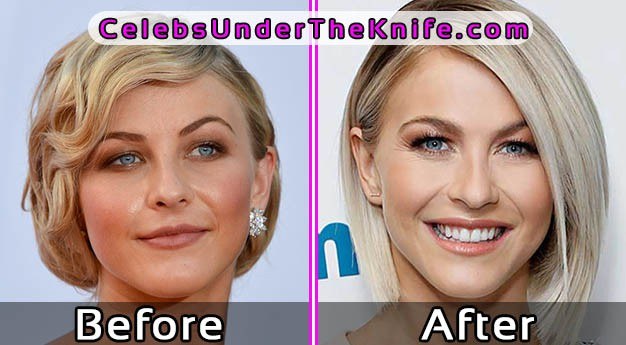 Julianne Hough Photos – Before After Plastic Surgery
