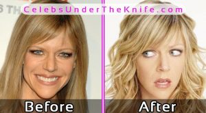 Kaitlin Olson Before After Plastic Surgery Pics