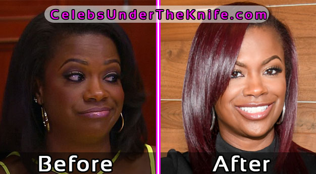 Kandi Burruss Pics – Before and After Plastic Surgery