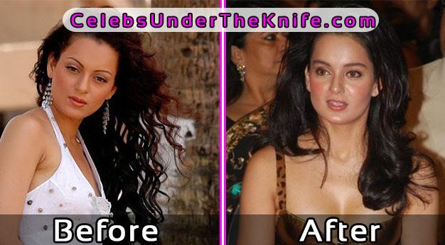 Kangna Ranaut Cosmetic Surgery Bollywood Disaster