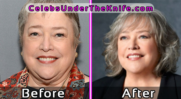 Kathy Bates Before and After Plastic Surgery Pics