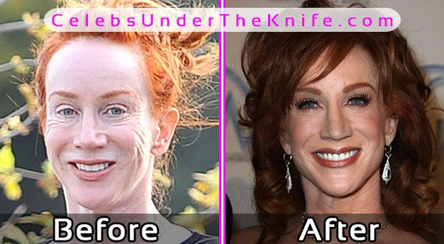 Kathy Griffin Plastic Surgery Before After Photos