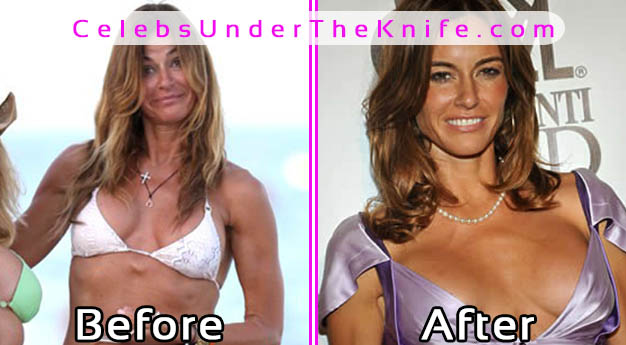 Kelly Bensimon Bad Boob Job Fail - Pics
