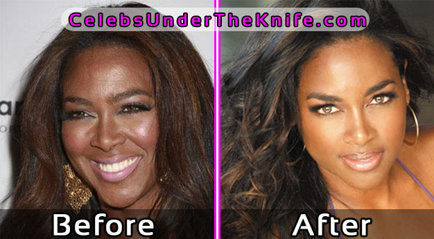 Kenya Moore Plastic Surgery Photos Before and After