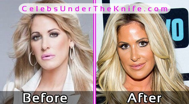 Kim Zolciak Plastic Surgery Photos Before After