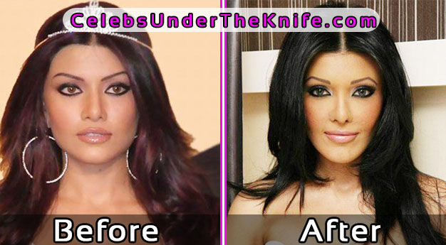 15 Plastic Surgery Disasters of Bollywood Celebrities!