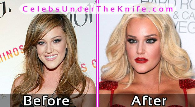 Lacey Schwimmer Photos Before After Plastic Surgery