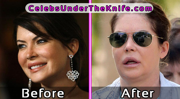 Lara Flynn Lip Injections Gone Bad Photos Before After