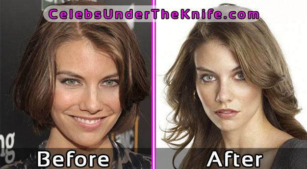 Lauren Cohan Plastic Surgery Photos