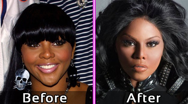 Lil Kim Plastic Surgery Pics – Before and After