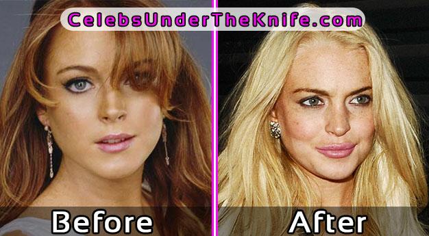 Lindsay Lohan Lip Surgery Gone Wrong Photos