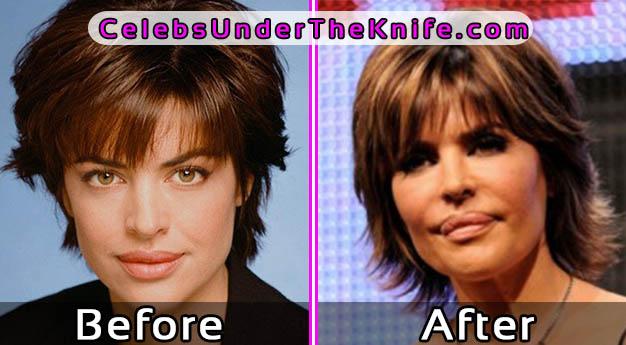 Lisa Rinna Bad Lip Surgery Before and After