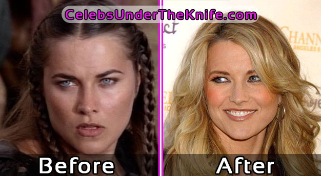 Lucy Lawless Plastic Surgery Photos Before and After